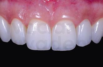 審美歯科emax
