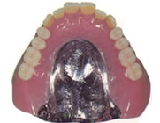 金属床義歯上顎