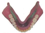 金属床義歯下顎